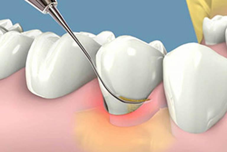 Phương pháp điều trị sưng lợi răng hàm tại nha khoa