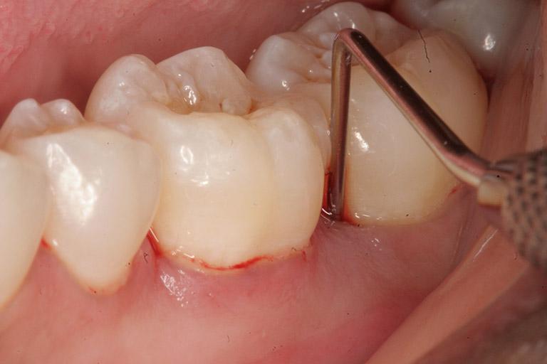 Sưng nướu răng cấm