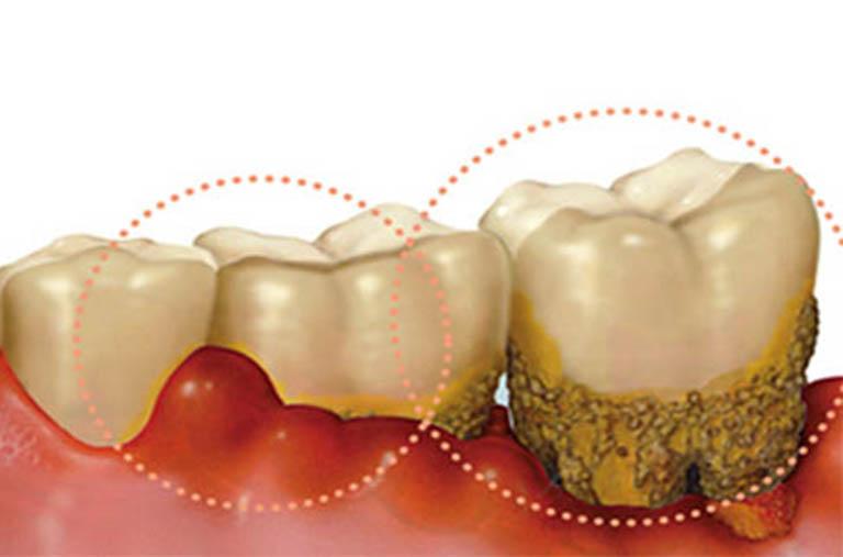 Sưng nướu răng có mủ - Thuốc và cách điều trị hiệu quả