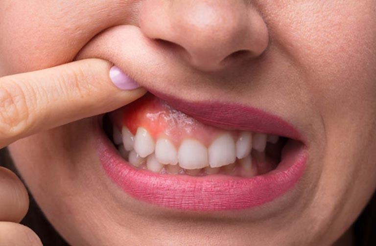 Dấu hiệu nhận biết sưng nướu răng có mủ