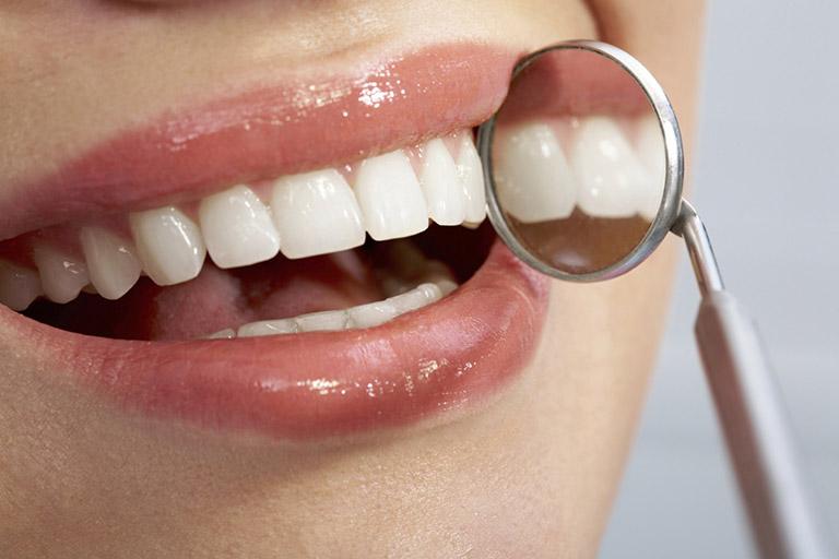 Sưng nướu răng trong cùng hàm trên