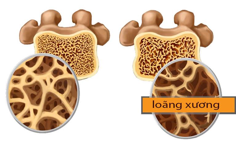 Tắt kinh không được điều trị kịp thời có thể gây loãng xương
