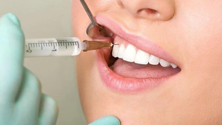 Tê răng