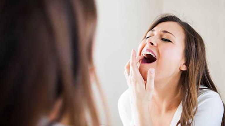 nguyên nhân tê răng