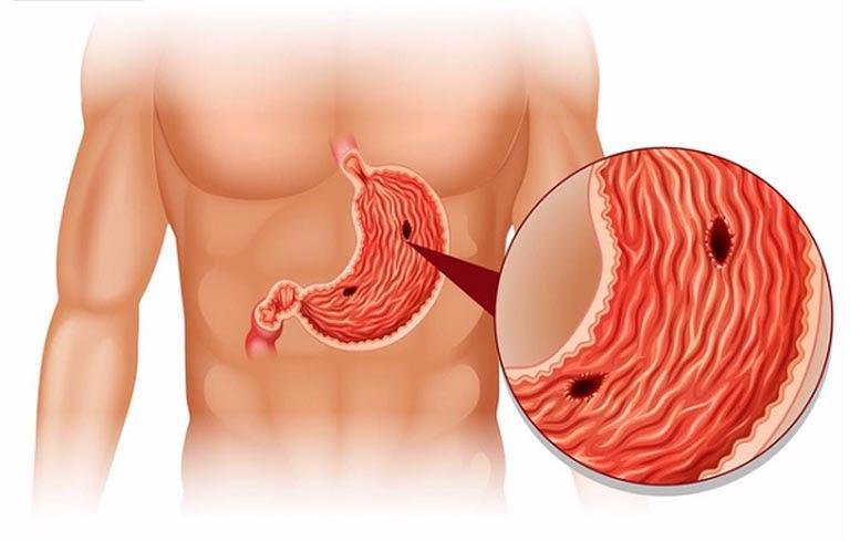 Xuất huyết dạ dày là một biến chứng nguy hiểm của bệnh đau dạ dày