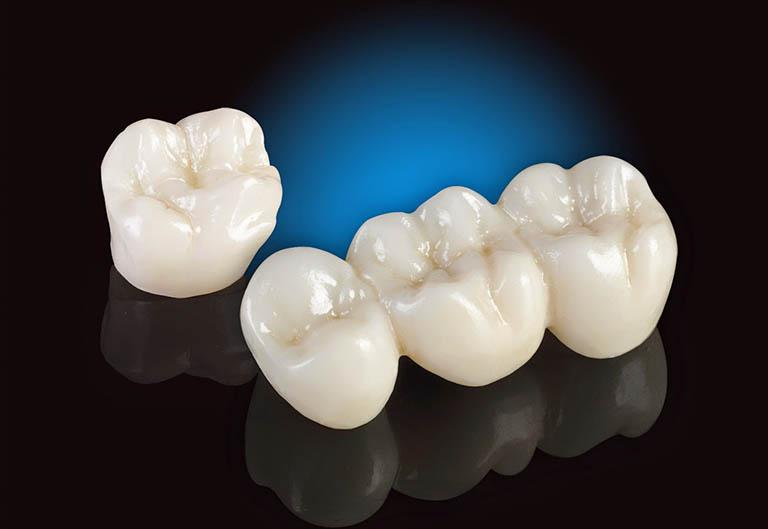Cách chăm sóc răng miệng sau quá trình điều trị tủy
