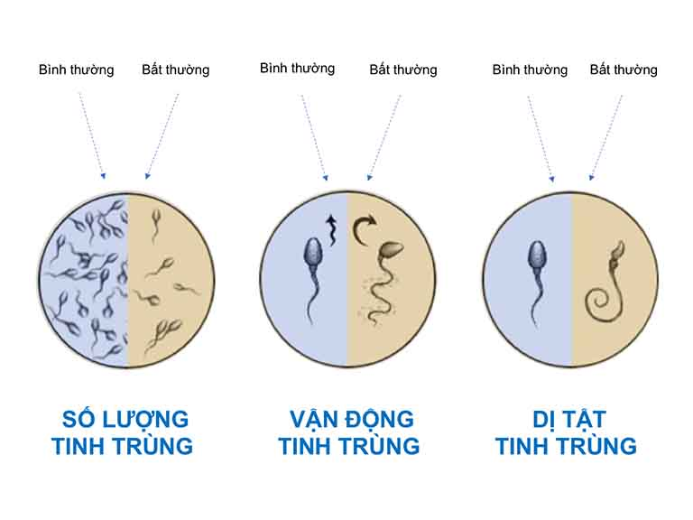 Những biến đổi bất thường của tinh trùng khi bị viêm tuyến tiền liệt
