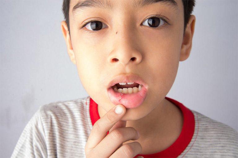 Trẻ em bị nhiệt miệng có nguy hiểm không? Điều trị nhiệt miệng cho trẻ như thế nào là an toàn?