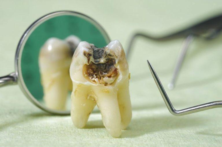 Răng cấm bị sâu có nhổ hay không tùy vào tình trạng sức khỏe của bạn và mức độ tổn thương răng.