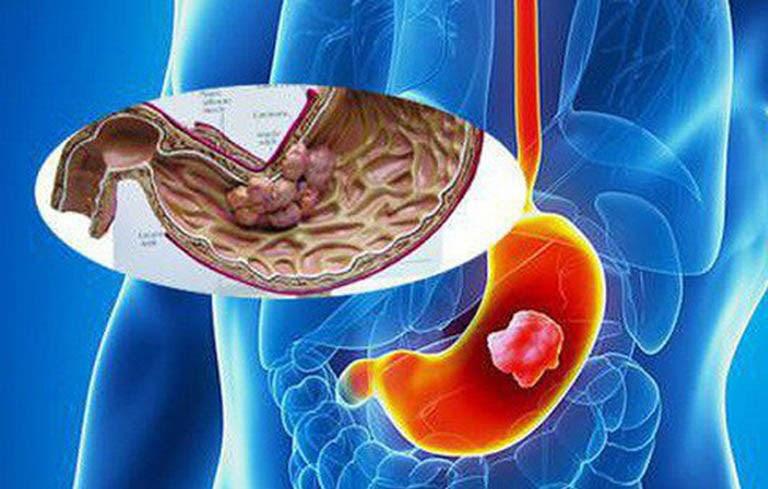 Ung thư dạ dày là một biến chứng nguy hiểm nhất của đau dạ dày