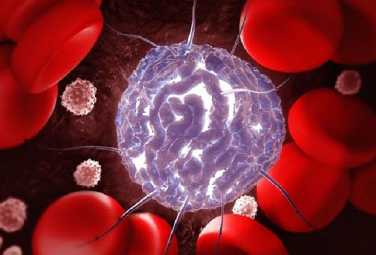 Ung thư máu cũng là nguyên nhân dẫn đến tình trạng chảy máu chân răng không rõ nguyên do