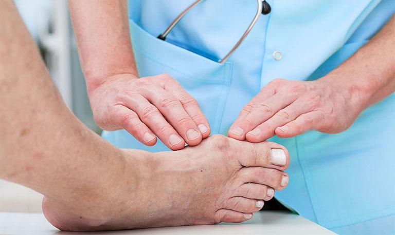 viêm bao hoạt dịch ở ngón chân cái