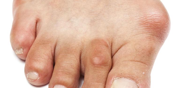 triệu chứng viêm bao hoạt dịch ngón chân cái