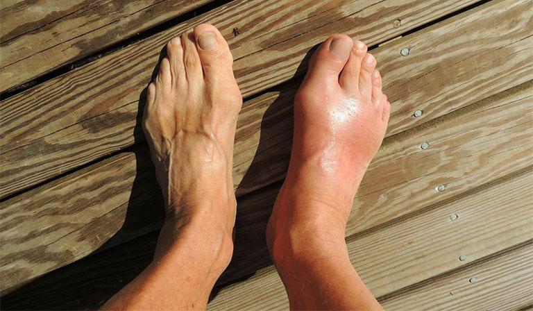 nguyên nhân gây viêm bao hoạt dịch ngón chân cái