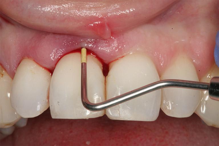 Bệnh viêm chân răng có mủ là một trong những bệnh răng miệng rất nguy hiểm