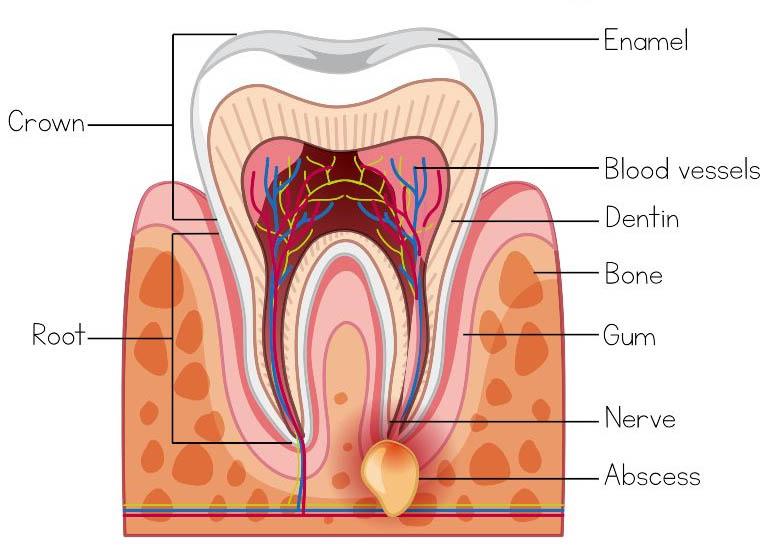 Viêm chân răng có mủ được hình thành là do sự nhiễm trùng ở phần mô nướu