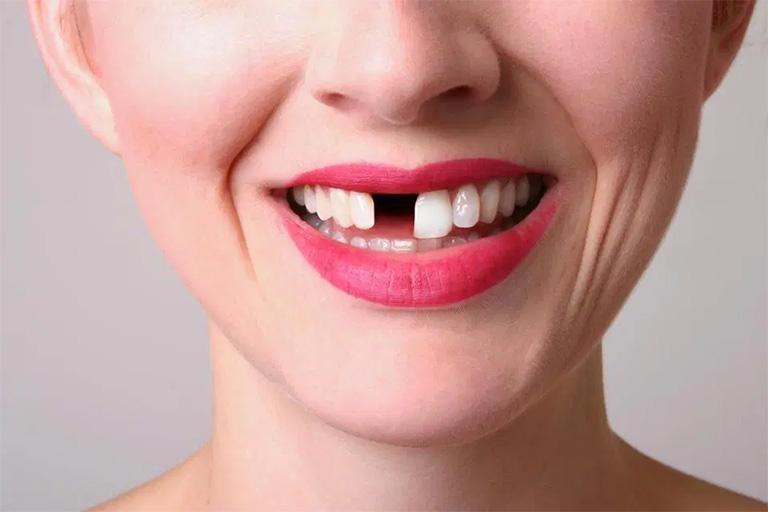 Mất răng là một trong những biến chứng nguy hiểm của bệnh viêm chân răng có mủ