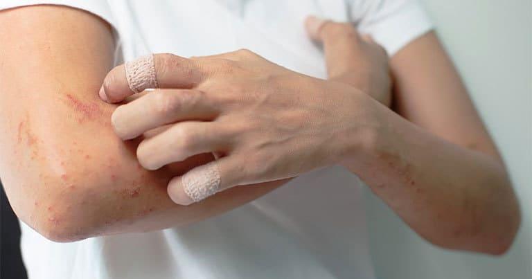 Viêm da cơ địa có tự khỏi không hay phải điều trị?