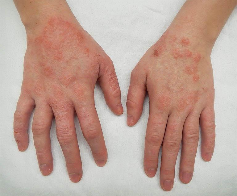 Bệnh viêm da cơ địa đối xứng là một thể của bệnh viêm da cơ địa thường gặp phải ở mọi lứa tuổi, nhất là trẻ em