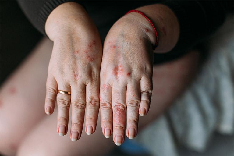 Cách nhận biết bệnh viêm da cơ địa đối xứng