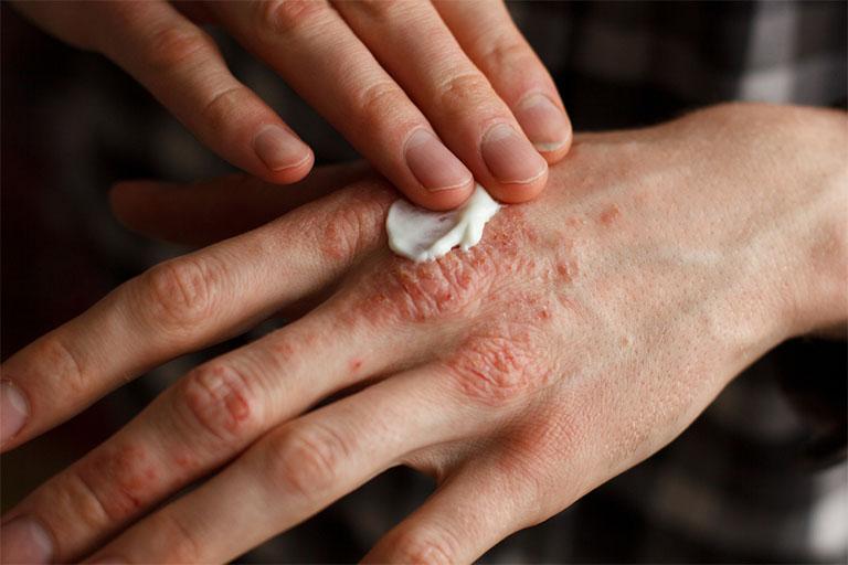 Ngoài công dụng cải thiện các triệu chứng của bệnh viêm da cơ địa đối xứng, kem bôi ngoài da còn có bảo vệ da khỏi các tác nhân gây hại