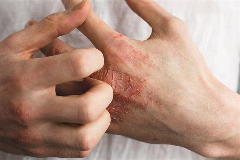 Tuyệt đối không được cãi quá mạnh trực tiếp lên vùng da bị viêm da cơ địa đối xứng, việc gãi quá mạnh có thể khiến vết thương càng trở nên nghiêm trọng hơn