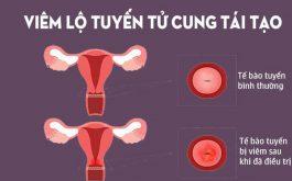Viêm lộ tuyến cổ tử cung tái tạo rất nguy hiểm