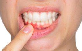 Bệnh viêm lợi chảy máu chân răng