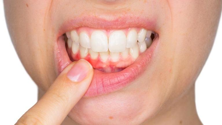 Viêm lợi chảy máu chân răng và cách điều trị hiệu quả