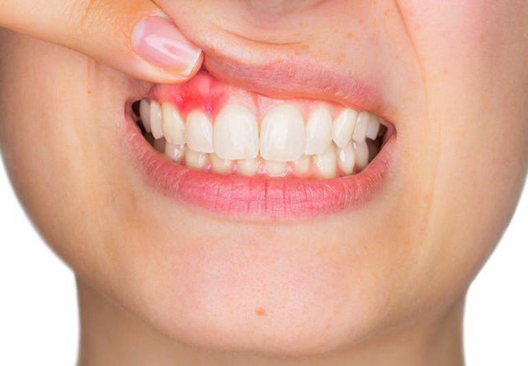 Chảy máu chân răng là triệu chứng thường gặp của bệnh viêm lợi