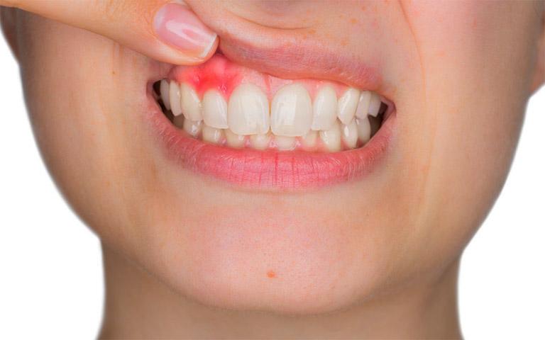 Tìm hiểu những thông tin về bệnh viêm nướu răng: Nguyên nhân, biểu hiện, cách điều trị và một số biện pháp phòng ngừa