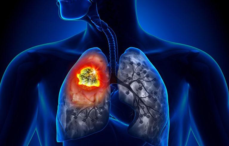 Viêm phổi có lây không?
