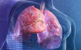 Viêm phổi điều trị bao lâu thì khỏi?