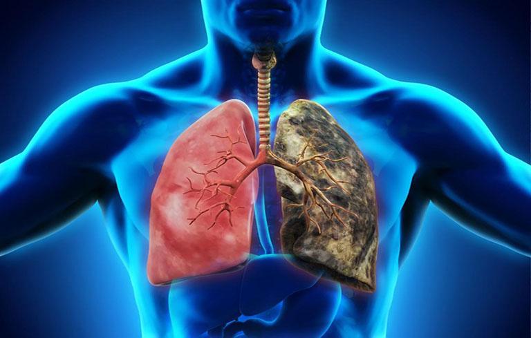 Viêm phổi có nguy hiểm không?