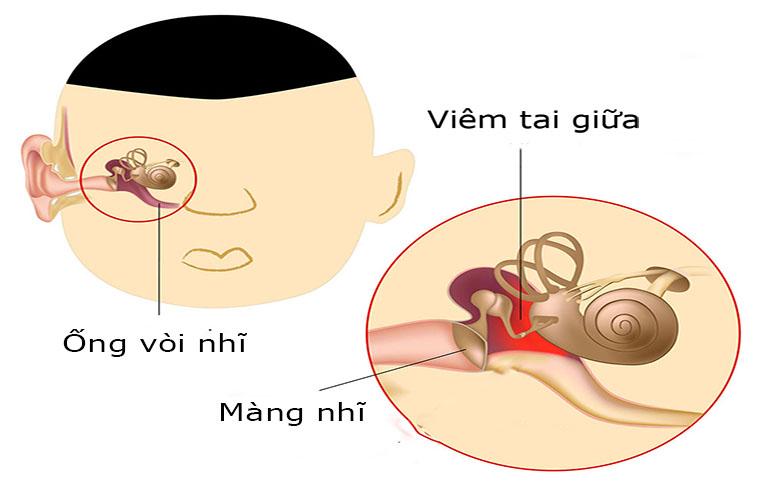 Viêm tai giữa là bệnh nhiễm trùng tai phổ biến nhất hiện nay