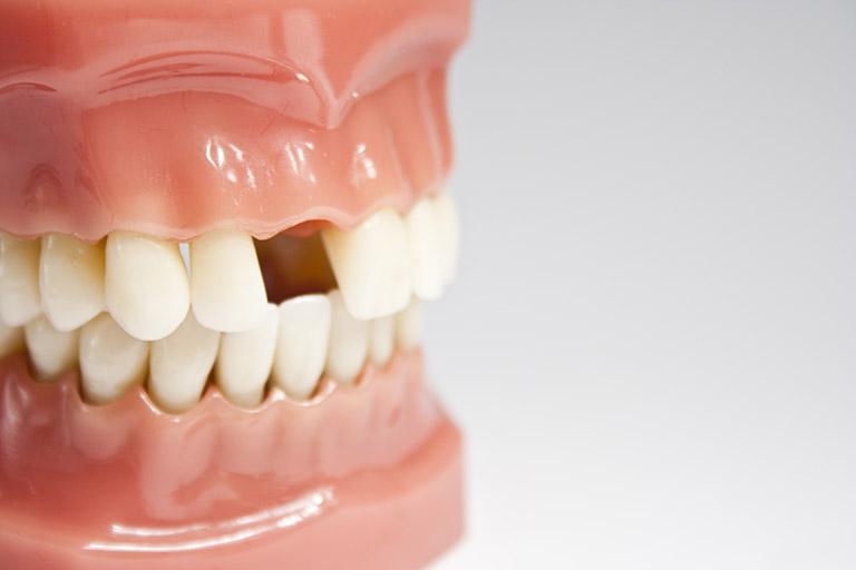 Viêm tủy răng nguyên nhân