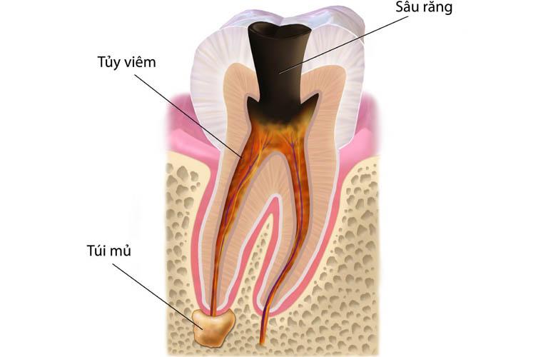 Tại sao cần tiến hành điều trị tủy răng?