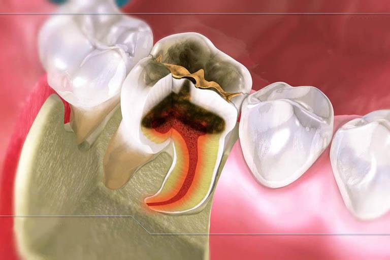 Viêm tủy răng có chữa được không? Có nguy hiểm không?