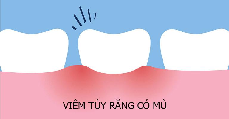 Viêm tủy răng có mủ