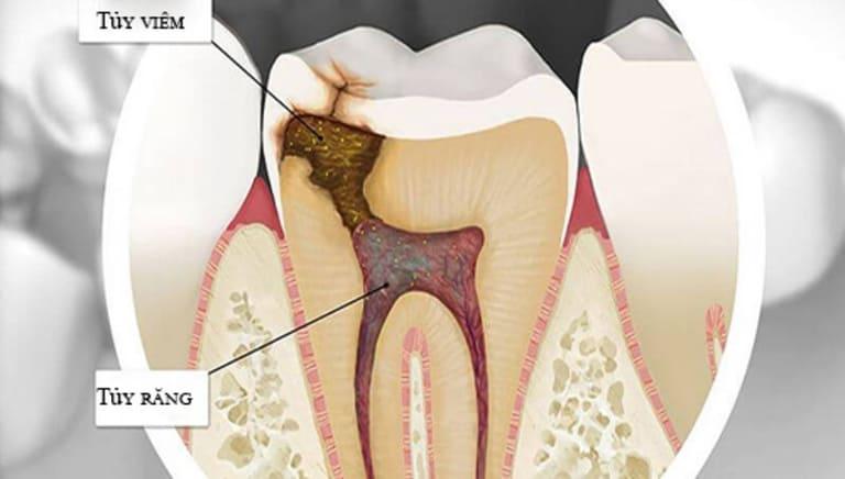 Viêm tủy răng ở bà bầu không nguy hiểm đến tính mạng nhưng ảnh hưởng rất nhiều đến sự phát triển của thai nhi.