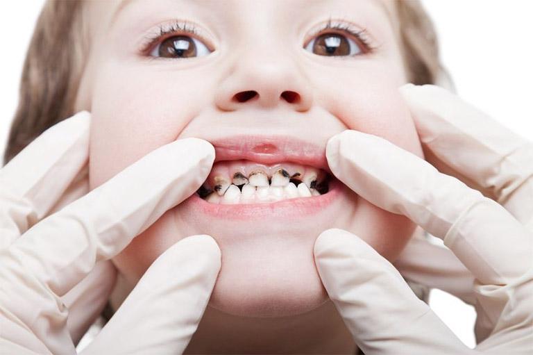Tìm hiểu những thông tin liên quan đến bệnh viêm tủy răng ở trẻ em