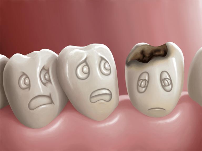 Sâu răng - Nguyên nhân chính gây nên tình trạng viêm tủy răng ở trẻ em