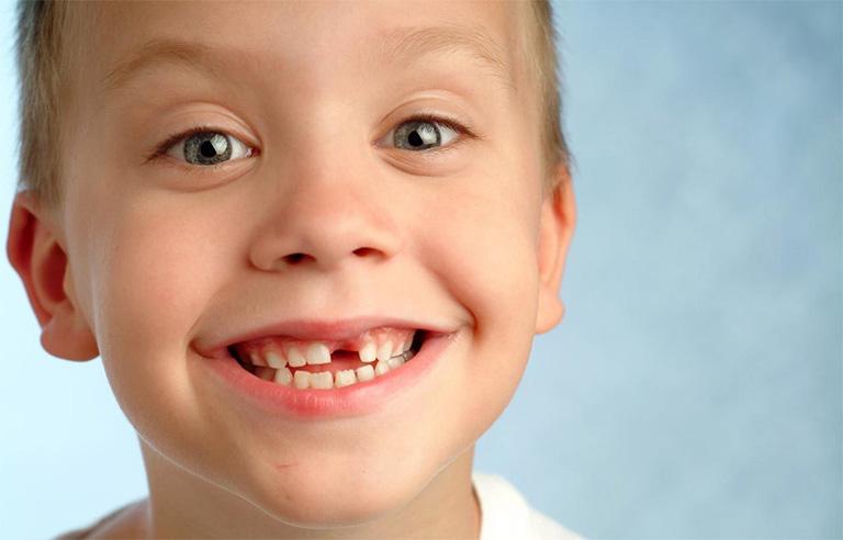 Mất răng là một trong những biến chứng nguy hiểm nhất của bệnh viêm tủy răng ở trẻ em