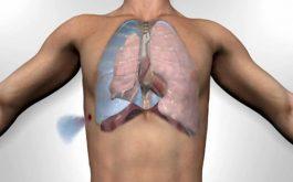 Lao màng phổi