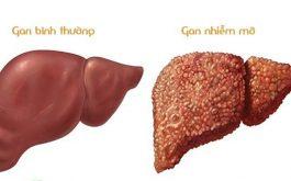 gan nhiễm mỡ có chữa khỏi được không
