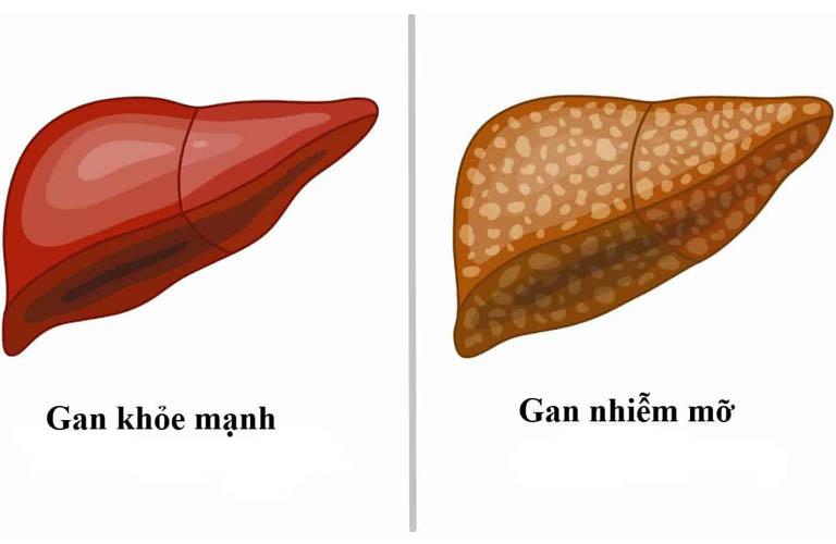 Bệnh gan nhiễm mỡ không do rượu