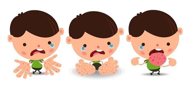Tìm hiểu những thông tin liên quan đến bệnh tay chân miệng: Nguyên nhân, triệu chứng, cách điều trị