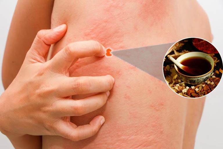 Bị nổi mề đay liên tục và cách chữa bằng đông y