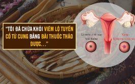 Hành trinh chữa viêm lộ tuyến cổ tử cung