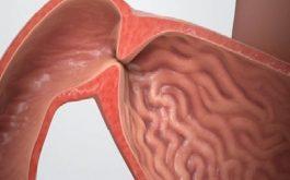 Hẹp hang vị dạ dày và những biến chứng nguy hiểm